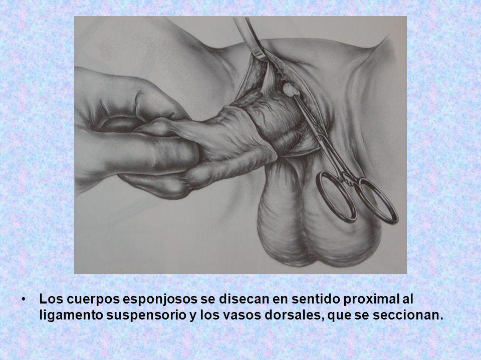 Los cuerpos esponjosos se disecan en sentido proximal al ligamento suspensorio y los vasos dorsales, que se seccionan.