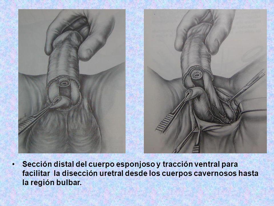 Sección distal del cuerpo esponjoso y tracción ventral para facilitar la disección uretral desde los cuerpos cavernosos hasta la región bulbar.
