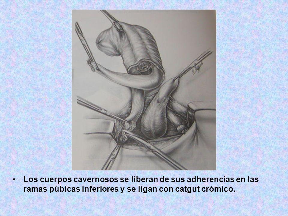 Los cuerpos cavernosos se liberan de sus adherencias en las ramas púbicas inferiores y se ligan con catgut crómico.