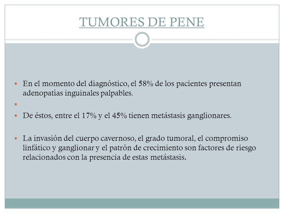 TUMORES DE PENE En el momento del diagnóstico, el 58% de los pacientes presentan adenopatías inguinales palpables.