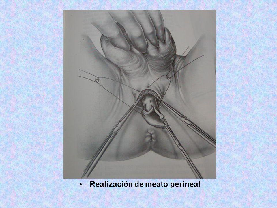Realización de meato perineal