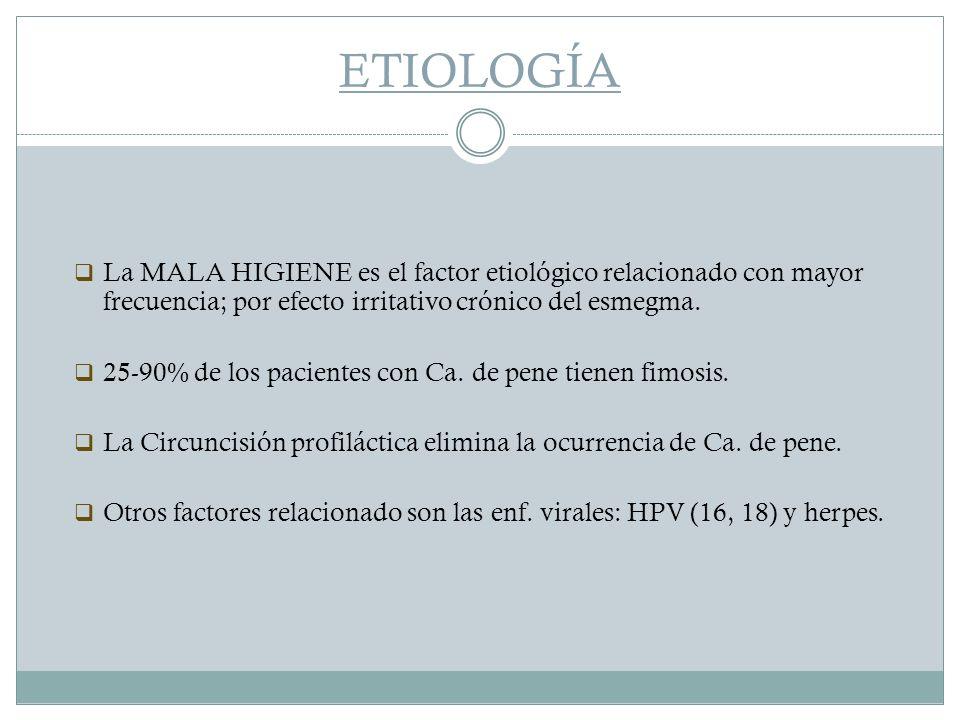 ETIOLOGÍA La MALA HIGIENE es el factor etiológico relacionado con mayor frecuencia; por efecto irritativo crónico del esmegma.