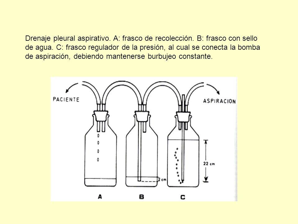 Drenaje pleural aspirativo. A: frasco de recolección
