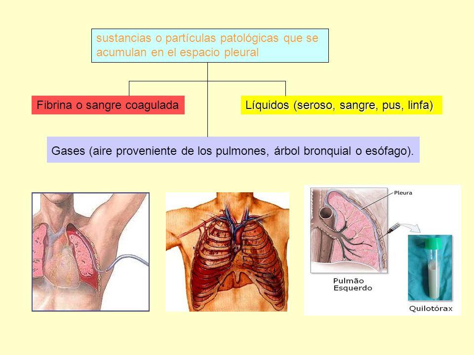 Gases (aire proveniente de los pulmones, árbol bronquial o esófago).