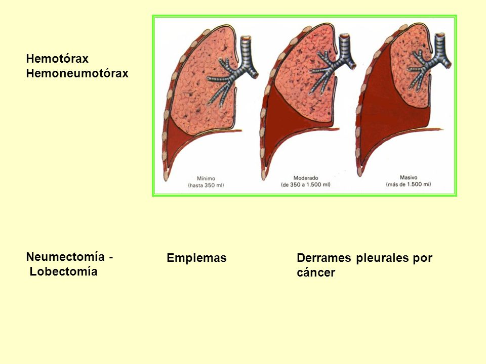 Hemotórax Hemoneumotórax Neumectomía - Lobectomía Empiemas Derrames pleurales por cáncer