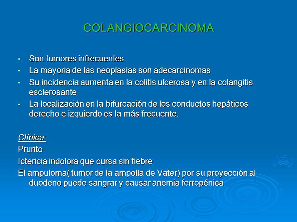 COLANGIOCARCINOMA Son tumores infrecuentes