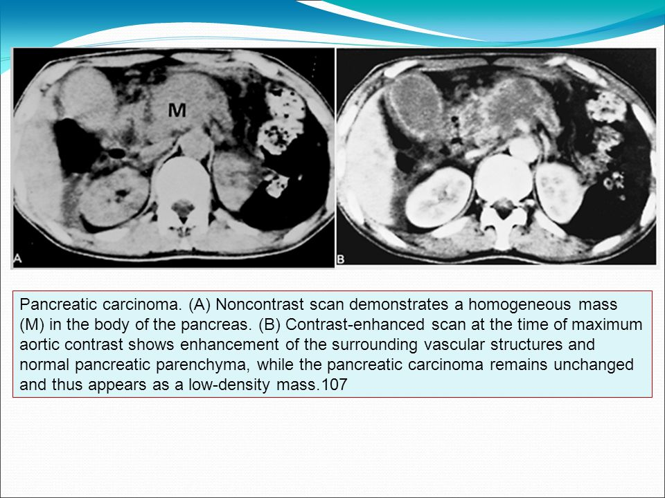 Pancreatic carcinoma.