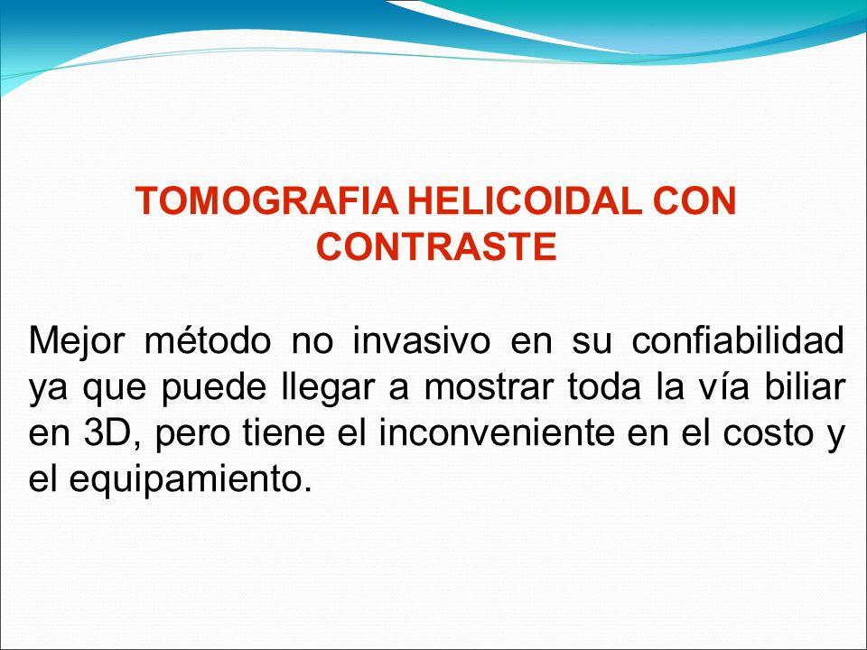 TOMOGRAFIA HELICOIDAL CON CONTRASTE