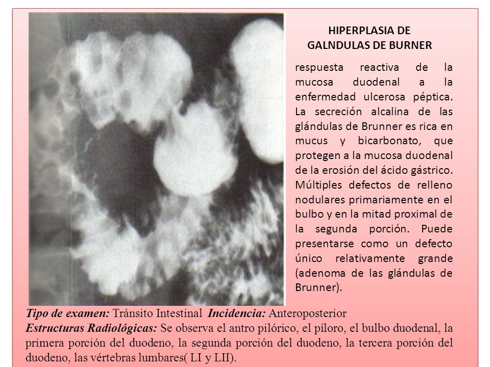 HIPERPLASIA DE GALNDULAS DE BURNER