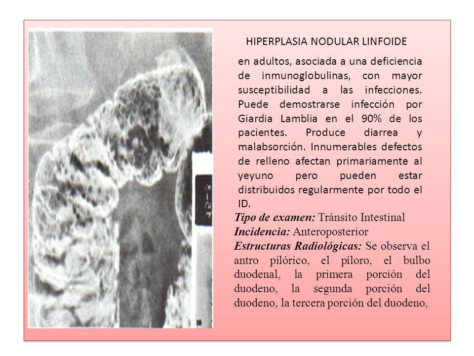 HIPERPLASIA NODULAR LINFOIDE