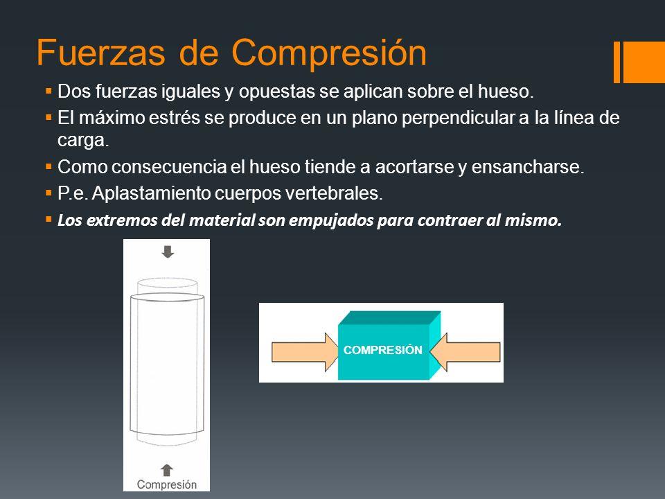 Fuerzas de Compresión Dos fuerzas iguales y opuestas se aplican sobre el hueso.