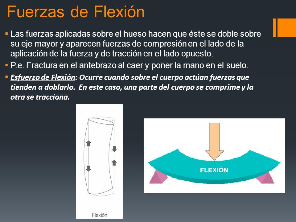 Fuerzas de Flexión