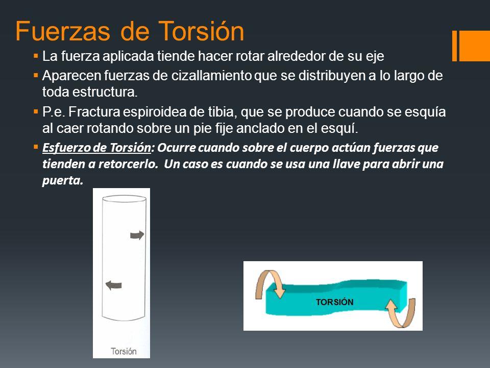 Fuerzas de Torsión La fuerza aplicada tiende hacer rotar alrededor de su eje.