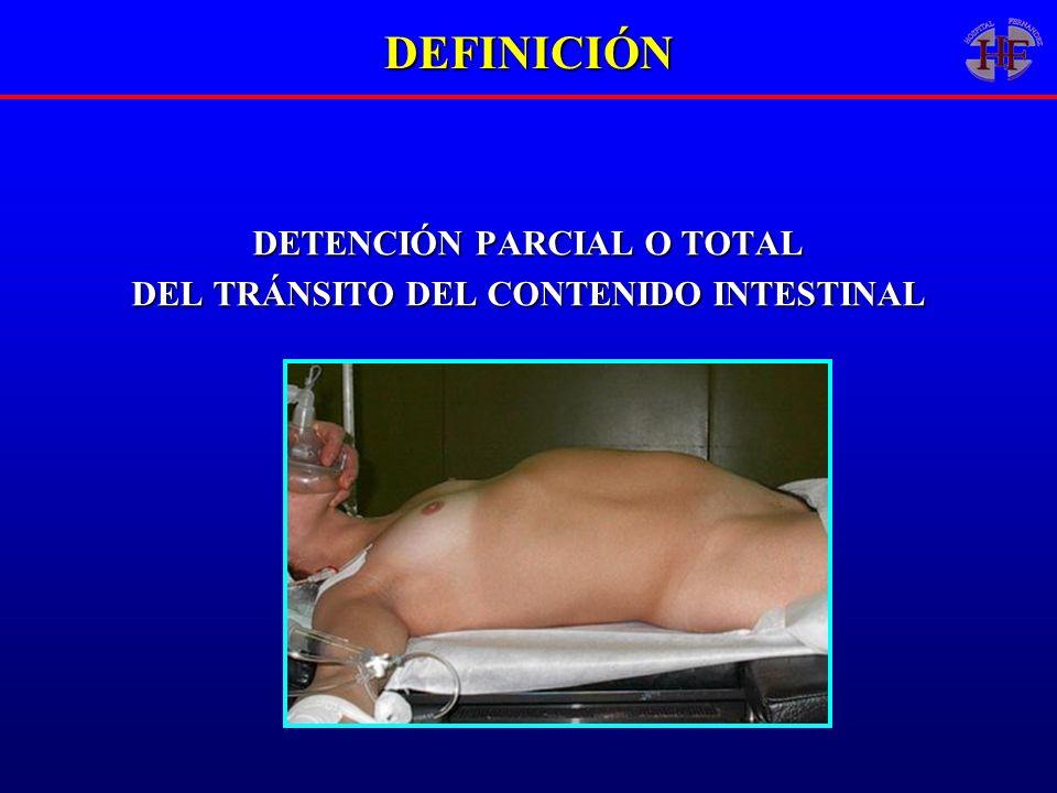 DETENCIÓN PARCIAL O TOTAL DEL TRÁNSITO DEL CONTENIDO INTESTINAL