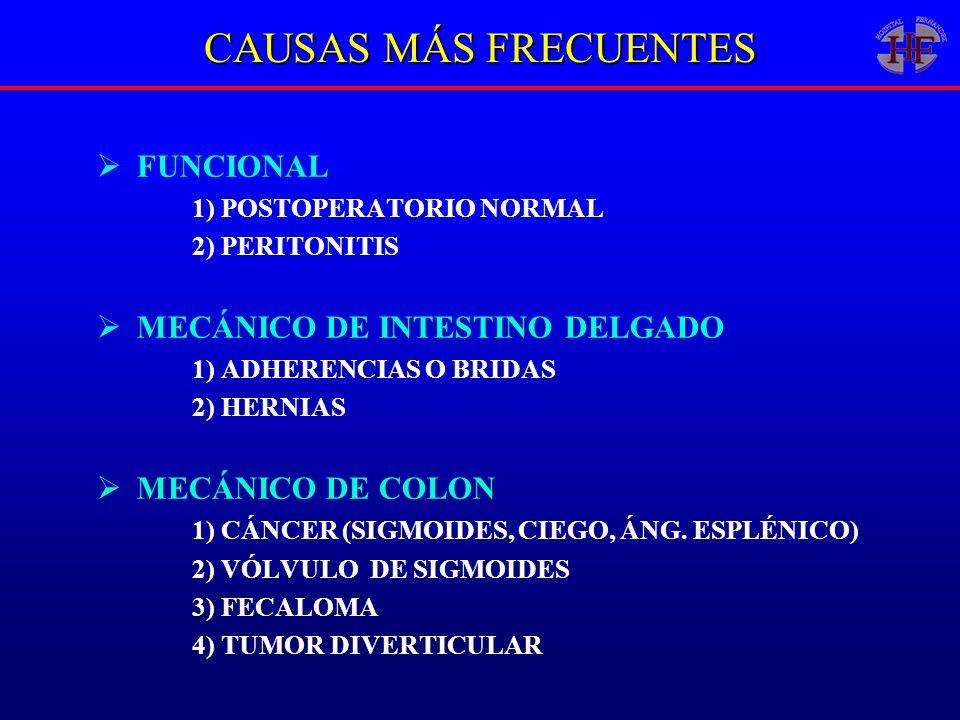 CAUSAS MÁS FRECUENTES FUNCIONAL MECÁNICO DE INTESTINO DELGADO