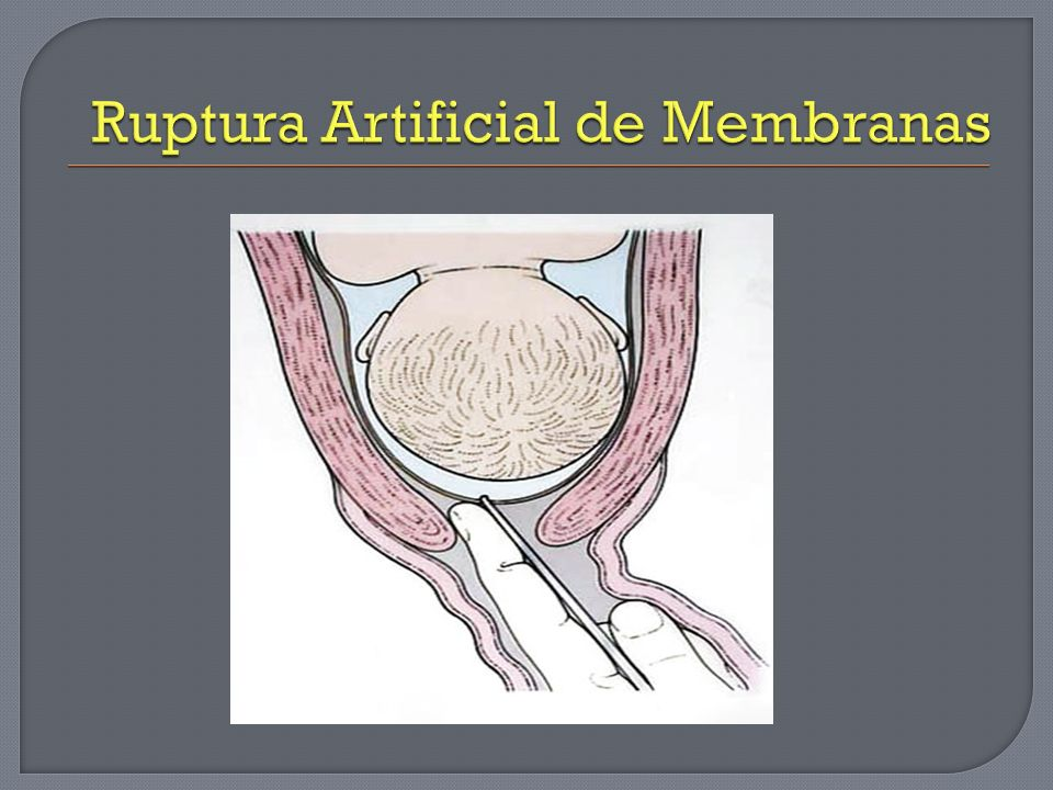 Ruptura Artificial de Membranas