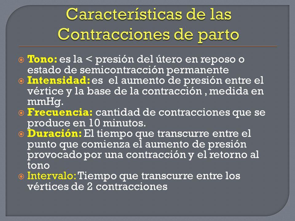 Características de las Contracciones de parto