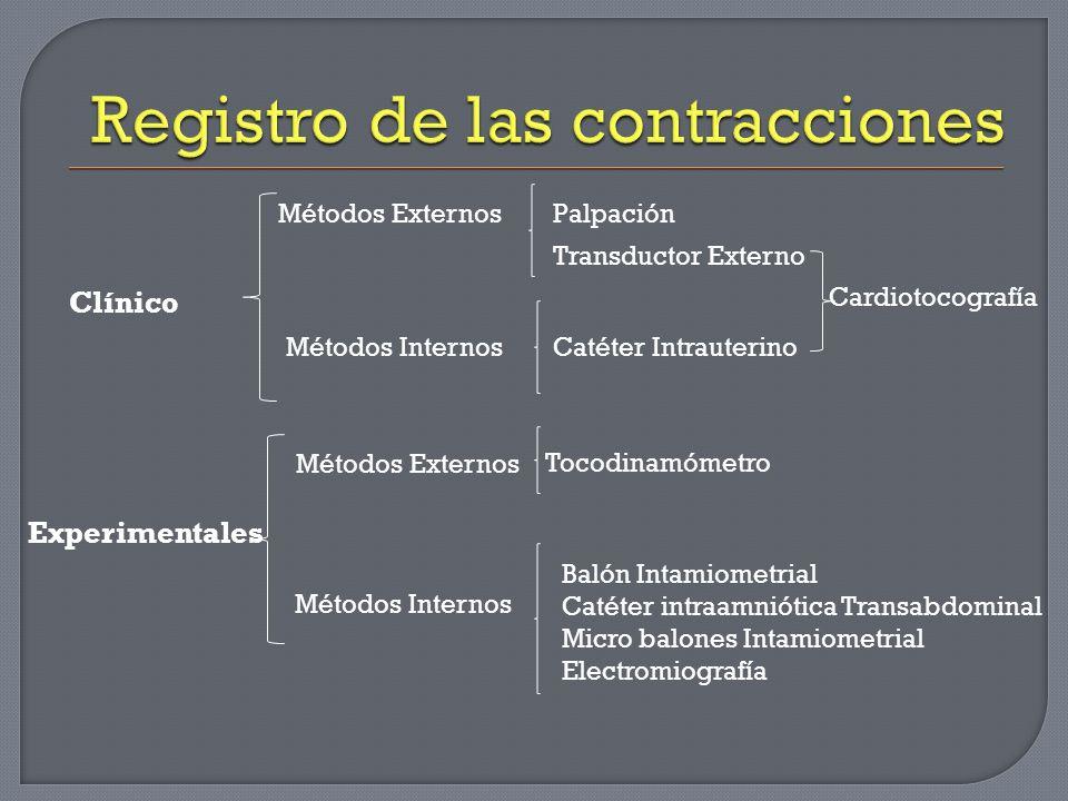 Registro de las contracciones