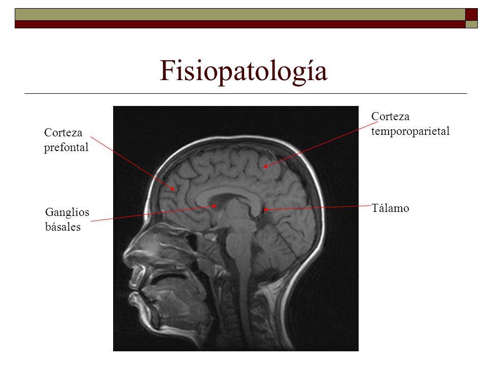 Fisiopatología Corteza temporoparietal Corteza prefontal Tálamo