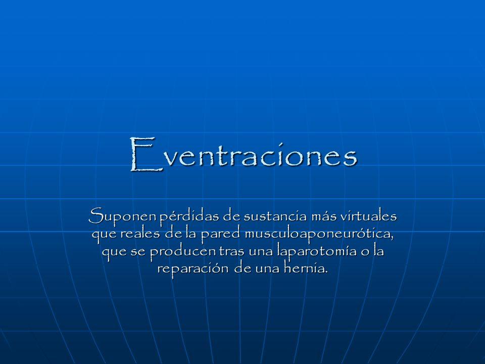 Eventraciones