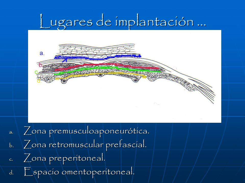 Lugares de implantación …