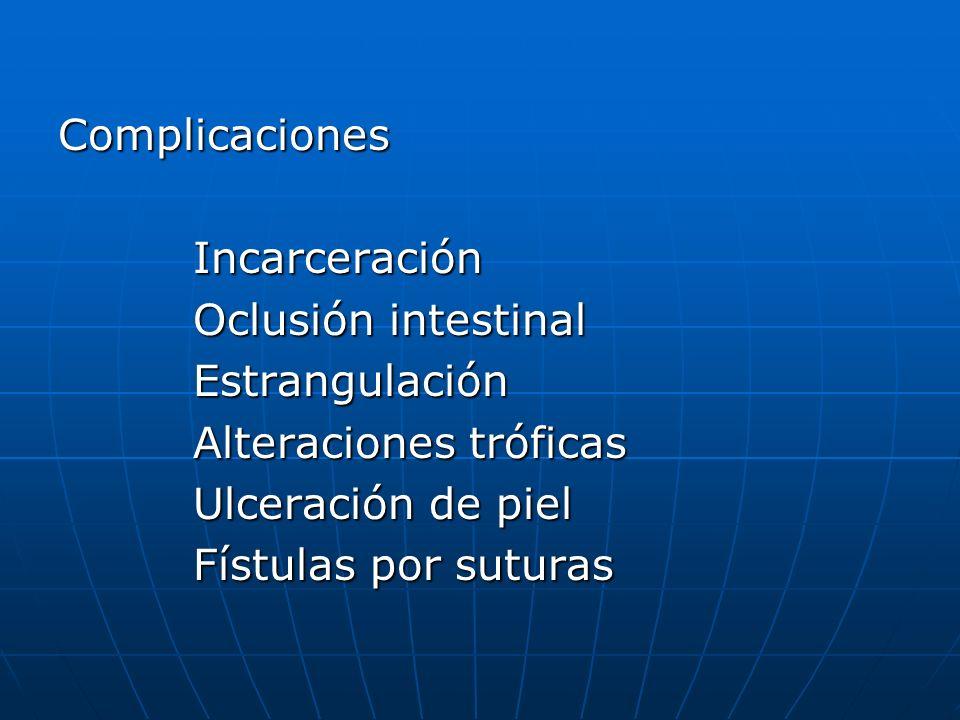 Complicaciones Incarceración. Oclusión intestinal. Estrangulación. Alteraciones tróficas. Ulceración de piel.