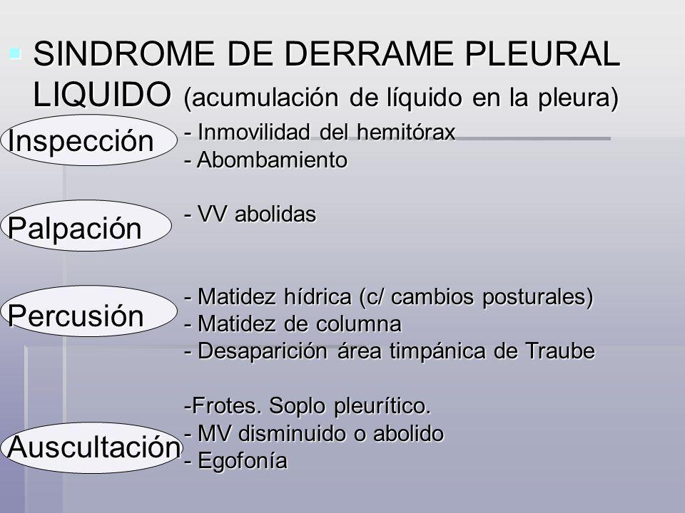SINDROME DE DERRAME PLEURAL LIQUIDO (acumulación de líquido en la pleura)