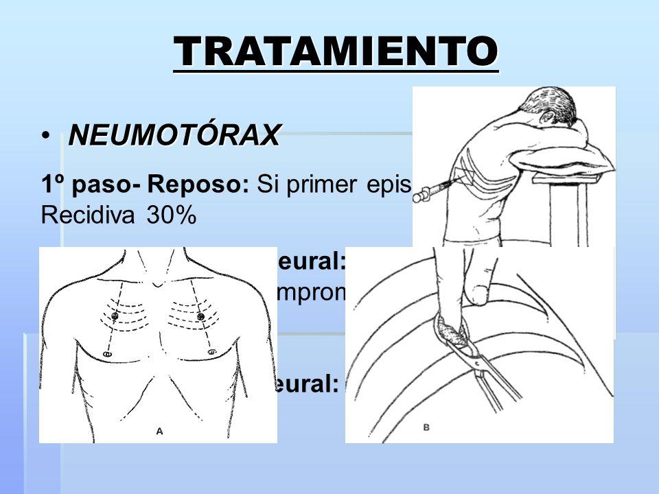 TRATAMIENTO NEUMOTÓRAX
