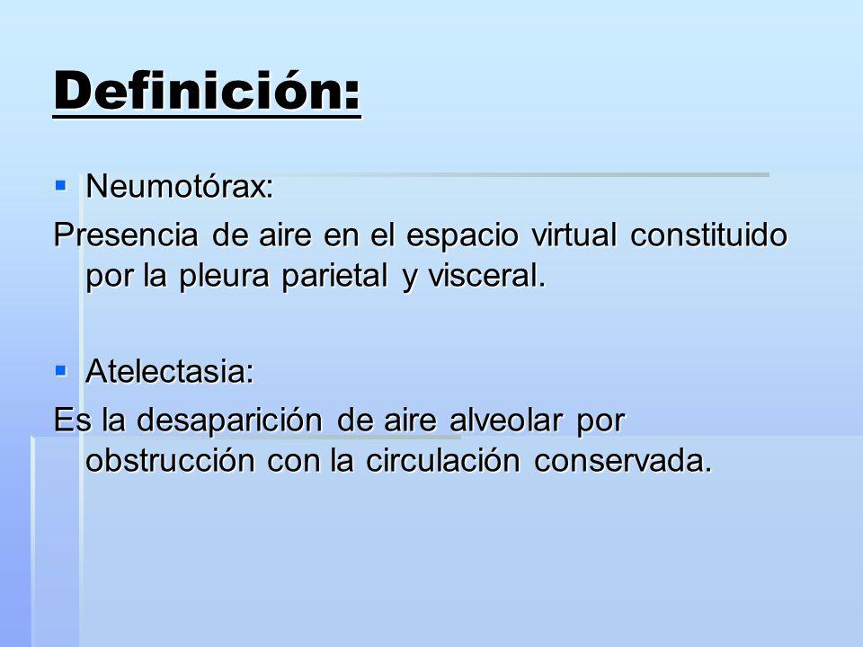 Definición: Neumotórax: