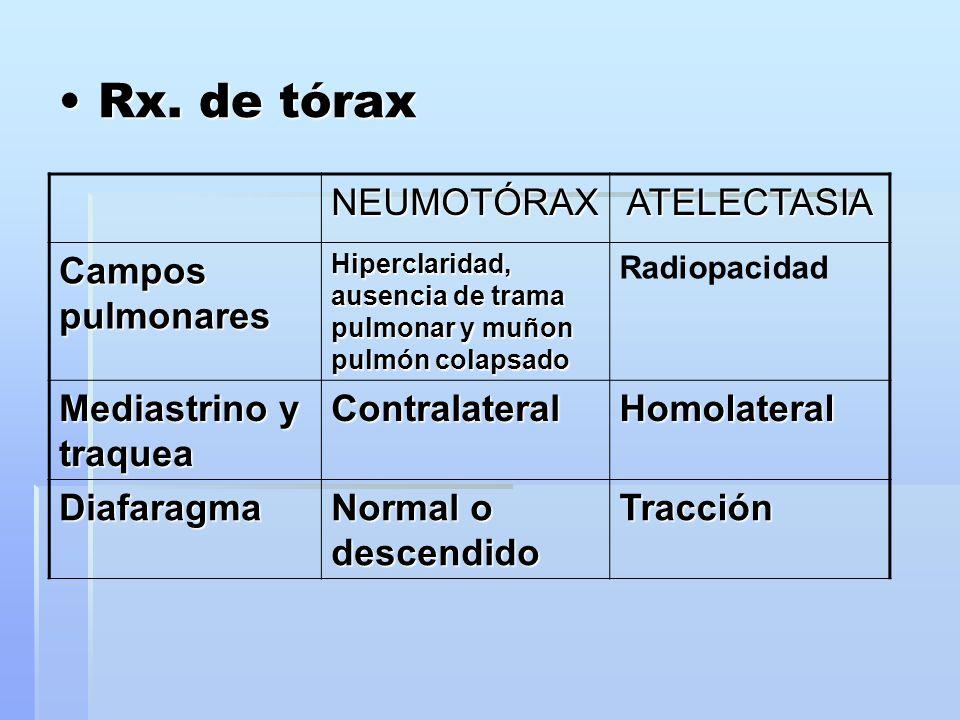 Rx. de tórax NEUMOTÓRAX ATELECTASIA Campos pulmonares