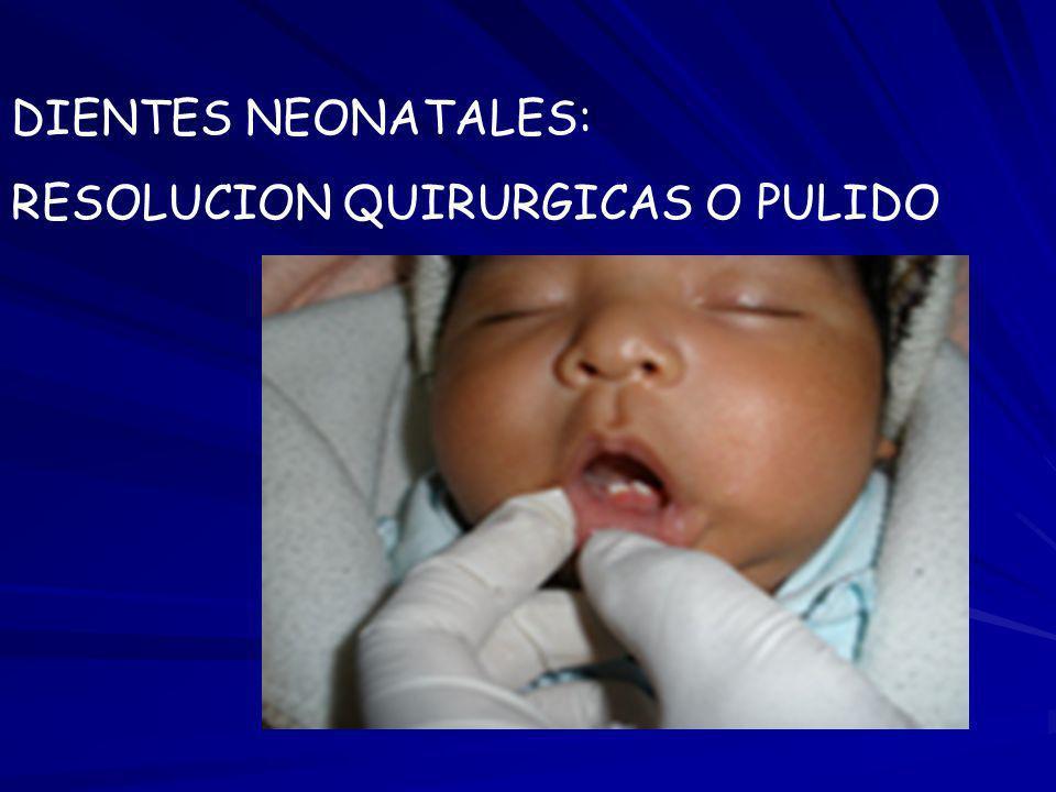 DIENTES NEONATALES: RESOLUCION QUIRURGICAS O PULIDO
