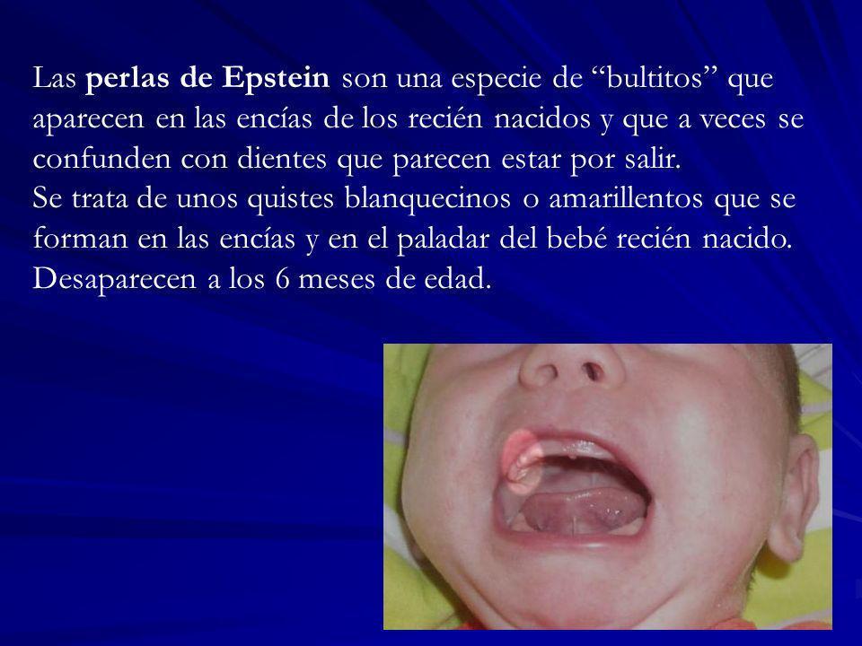 Las perlas de Epstein son una especie de bultitos que aparecen en las encías de los recién nacidos y que a veces se confunden con dientes que parecen estar por salir.