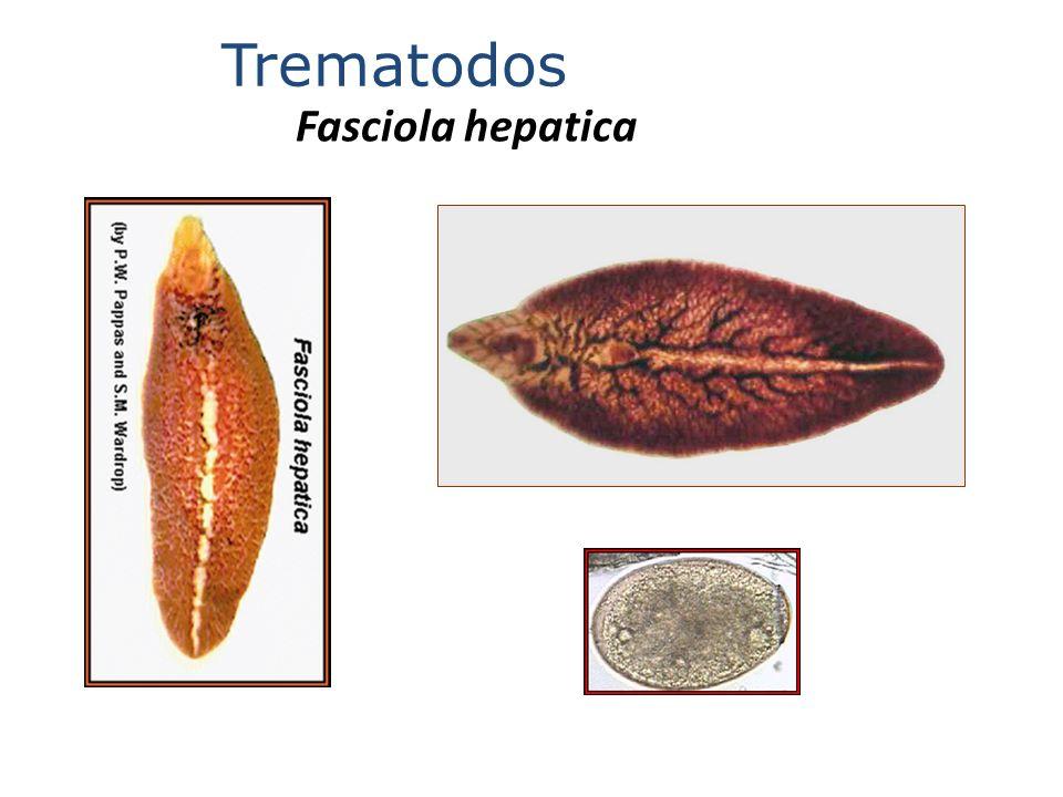 Trematodos Fasciola hepatica