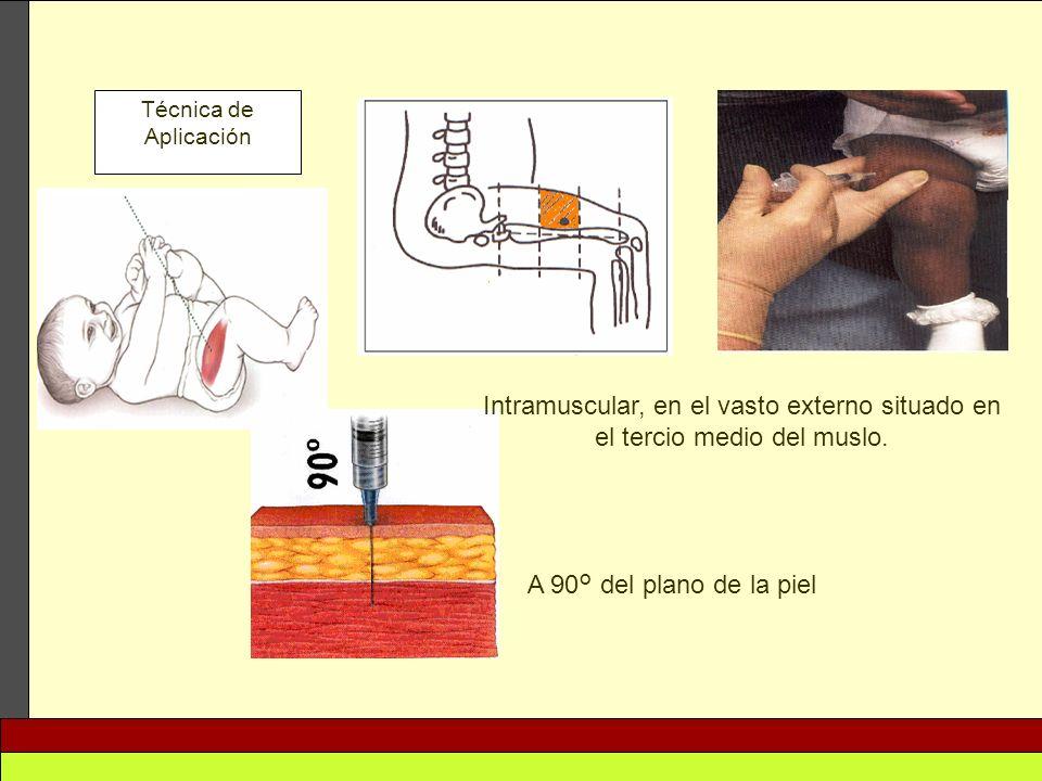Técnica de Aplicación Intramuscular, en el vasto externo situado en el tercio medio del muslo.