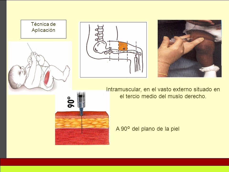 Técnica de Aplicación Intramuscular, en el vasto externo situado en el tercio medio del muslo derecho.