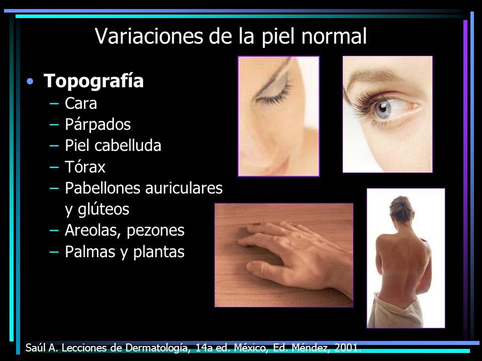 Variaciones de la piel normal