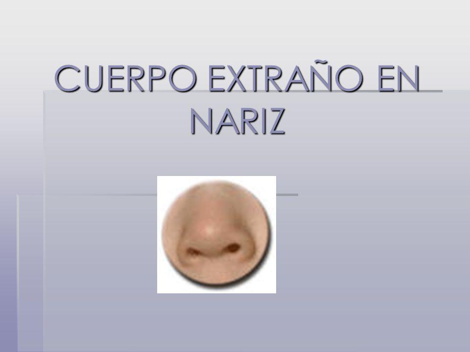CUERPO EXTRAÑO EN NARIZ