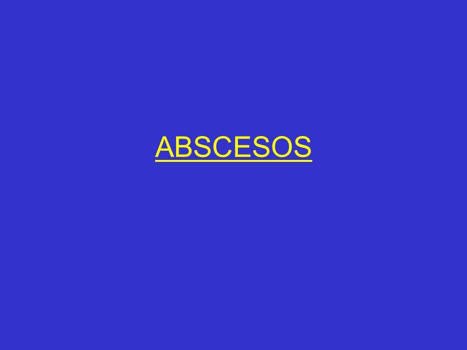 ABSCESOS