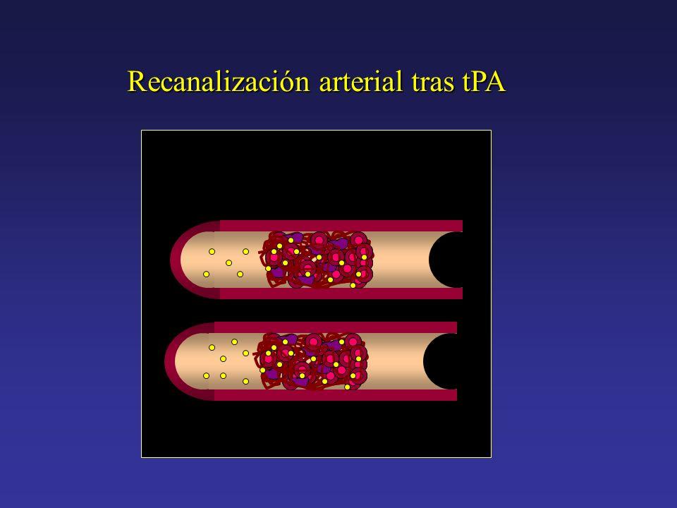 Recanalización arterial tras tPA