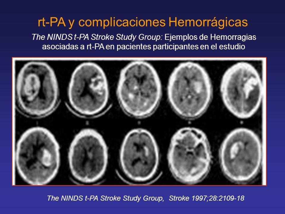 rt-PA y complicaciones Hemorrágicas