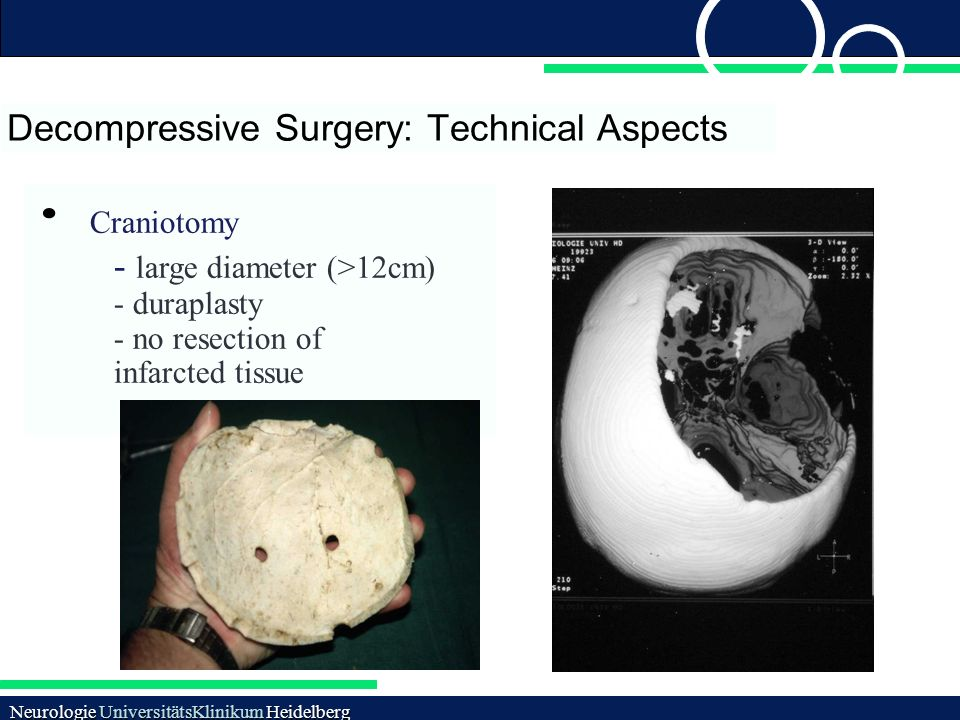 Decompressive Surgery: Technical Aspects