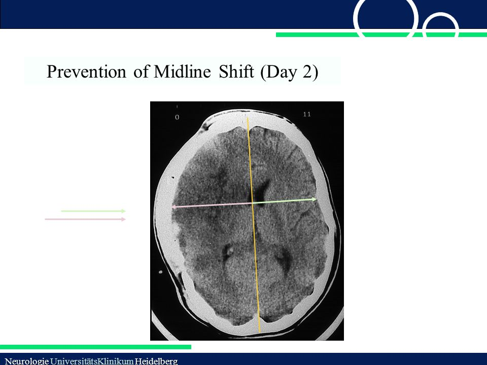 Prevention of Midline Shift (Day 2)