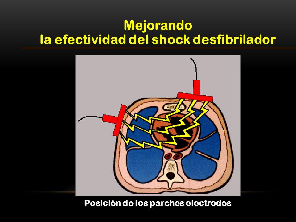 Mejorando la efectividad del shock desfibrilador