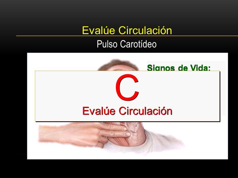 C Evalúe Circulación Evalúe Circulación Pulso Carotídeo