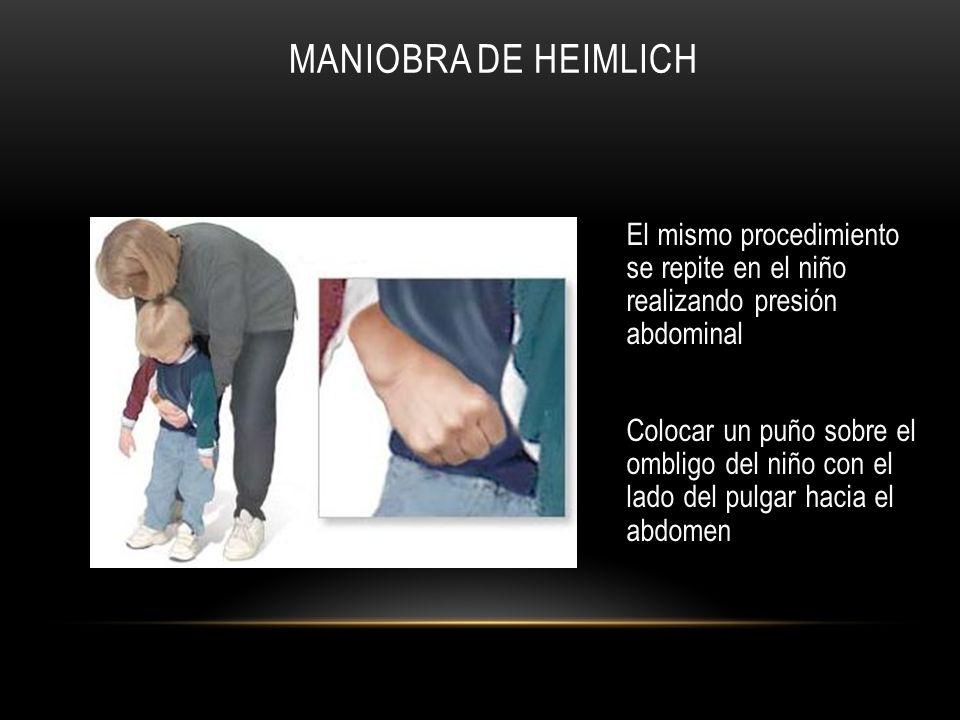 Maniobra de Heimlich El mismo procedimiento se repite en el niño realizando presión abdominal.
