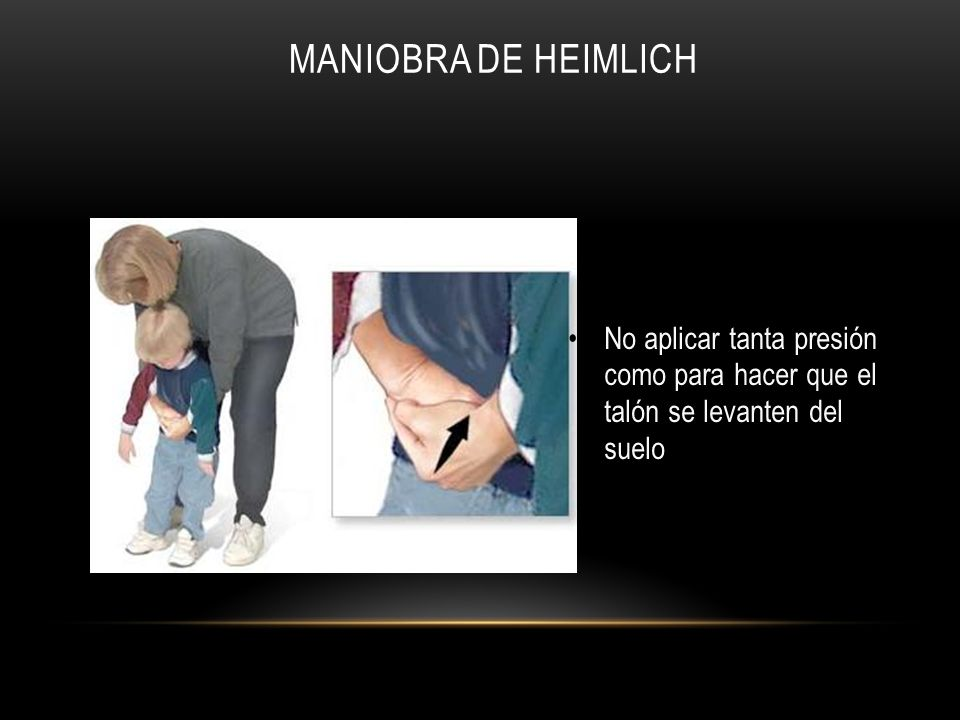 Maniobra de Heimlich No aplicar tanta presión como para hacer que el talón se levanten del suelo