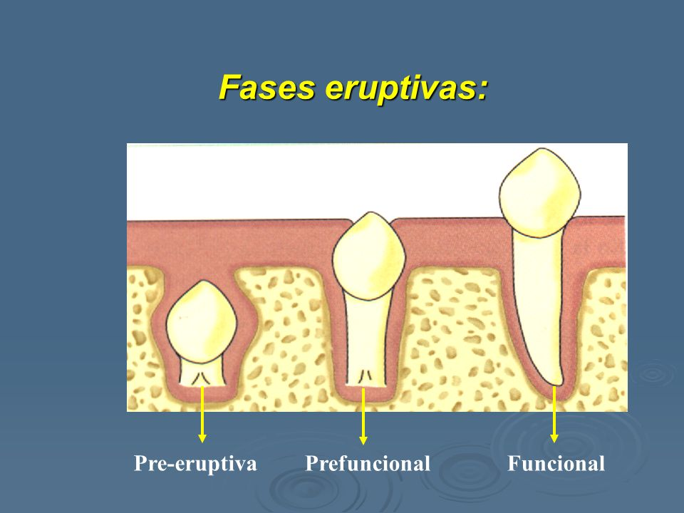 Fases eruptivas: Pre-eruptiva Prefuncional Funcional