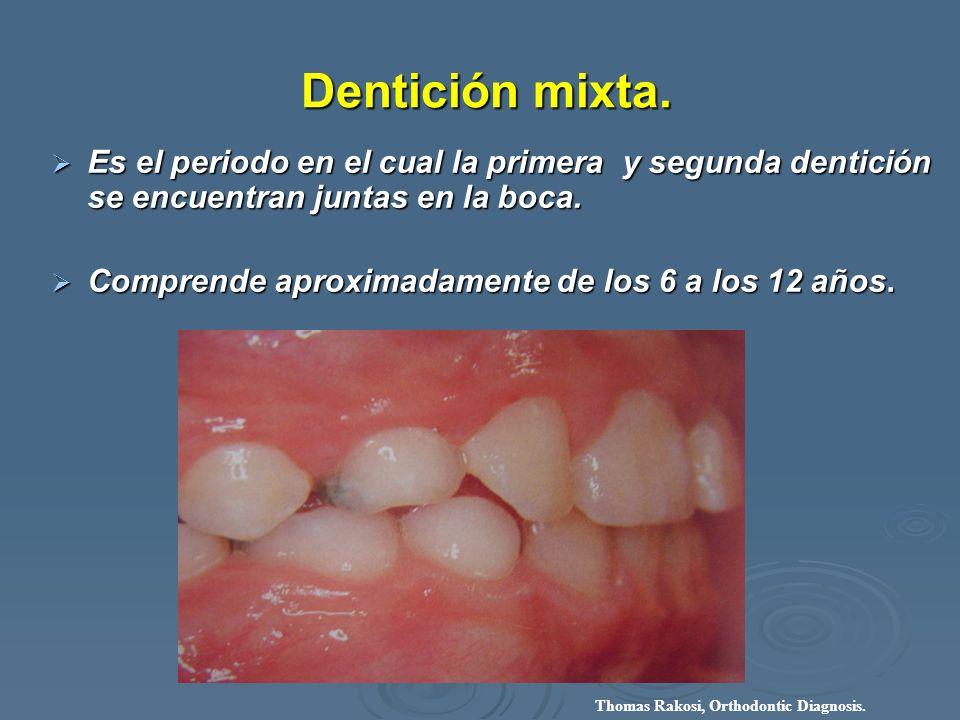 Dentición mixta. Es el periodo en el cual la primera y segunda dentición se encuentran juntas en la boca.