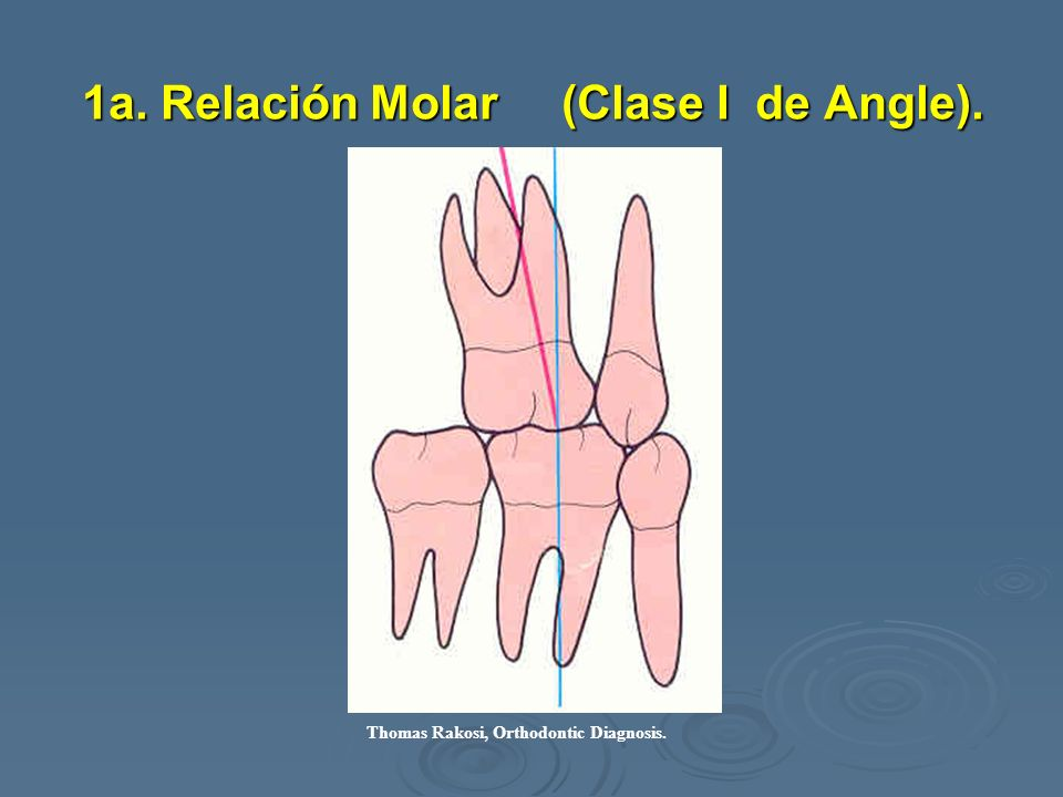 1a. Relación Molar (Clase I de Angle).