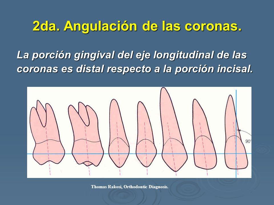 2da. Angulación de las coronas.